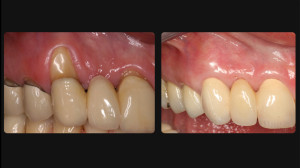 Befroe and after gum restoration
