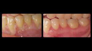 Before and after periodontal work - 4