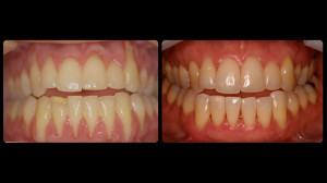 Before and after slides of periodontal work-6