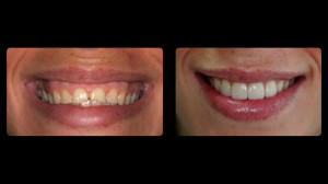Before and after from periodontist Dr. Schrott