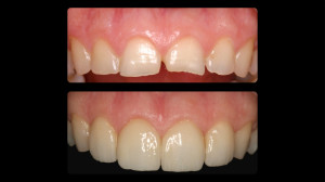 Before and after Top teeth were restored