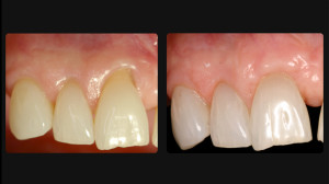 Before and after Periodontal work