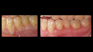 before and after periodontal work - 3