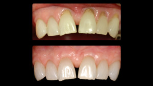 Before and after gum restoration