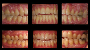 Before and after slides of periodontal work by Dr. Alexander Schrott